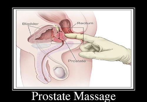 Prostate Massage Black